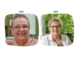Marion Andrews before in 2015 and now after cancer-free 2020